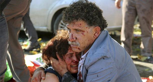 Explosions meurtrières en Turquie : Au moins 86 morts et plus de 150 blessés