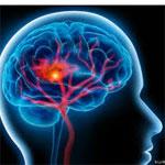 Accident Vasculaire Cérébral, AVC : Une nouvelle technique qui sauve des vies