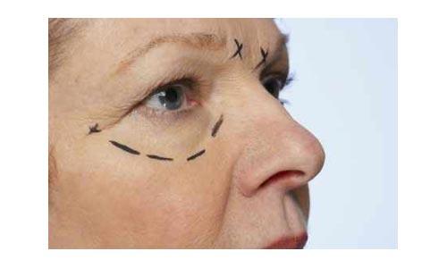 chirurgie-esthetique-250310-1.jpg