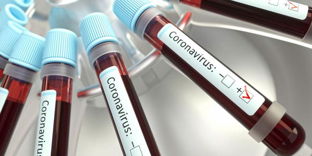 مدنين: تزايد عدد الإصابات بفيروس كورونا أمام مواجهة صعوبات في إيواء الحالات الموجبة