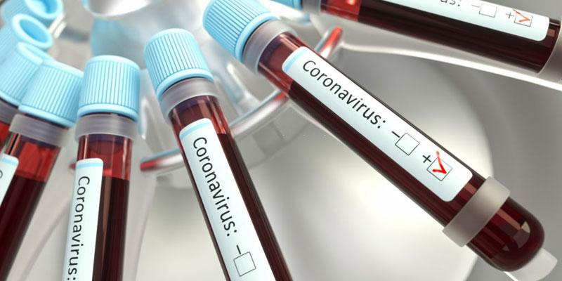 Un nouveau cas de coronavirus à Sfax