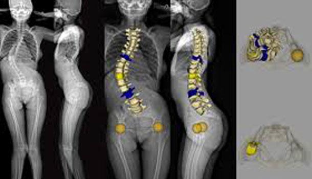 Le spécialiste international de l'imagerie orthopédique ouvre ses premiers sites en Tunisie