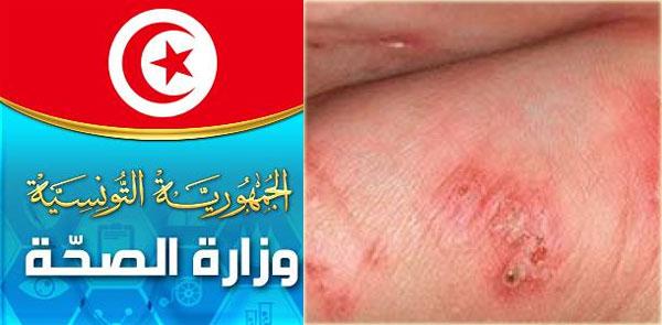 قابس: أنباء عن تفشي مرض الحمى التيفية والوزارة تنفي