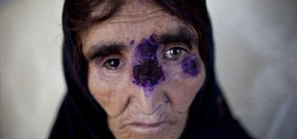 مرض خطير ينتشر من سوريا للشرق الأوسط