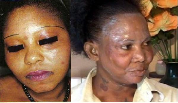 Beauté ou les ravages de la dépigmentation des peaux noires