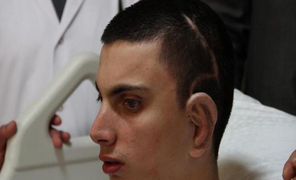 زراعة أذن من غضروف إنسان حي لأول مرة في العالم