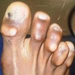 Les pieds les plus moches du football !