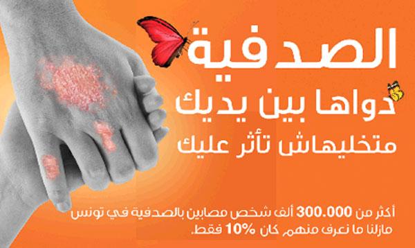 psoriasis-171015-1.jpg