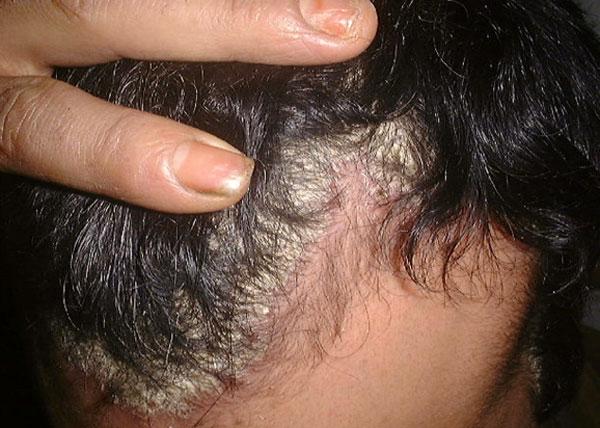 psoriasis-171015-3.jpg