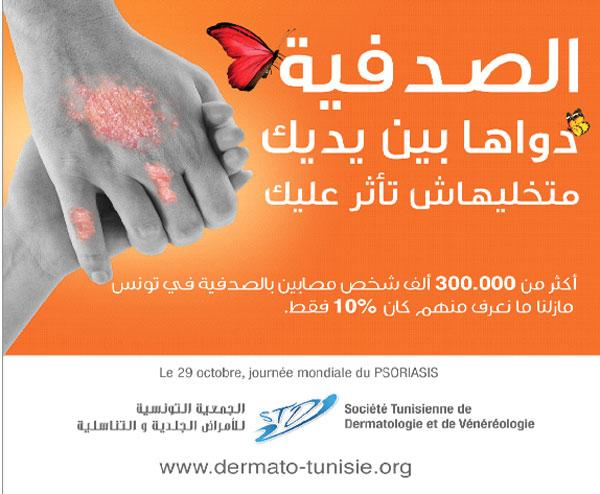 psoriasis-171015-4.jpg