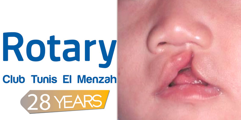 Bec-de-lièvre: Des enfants seront opérés gratuitement à l'hôpital Sahloul